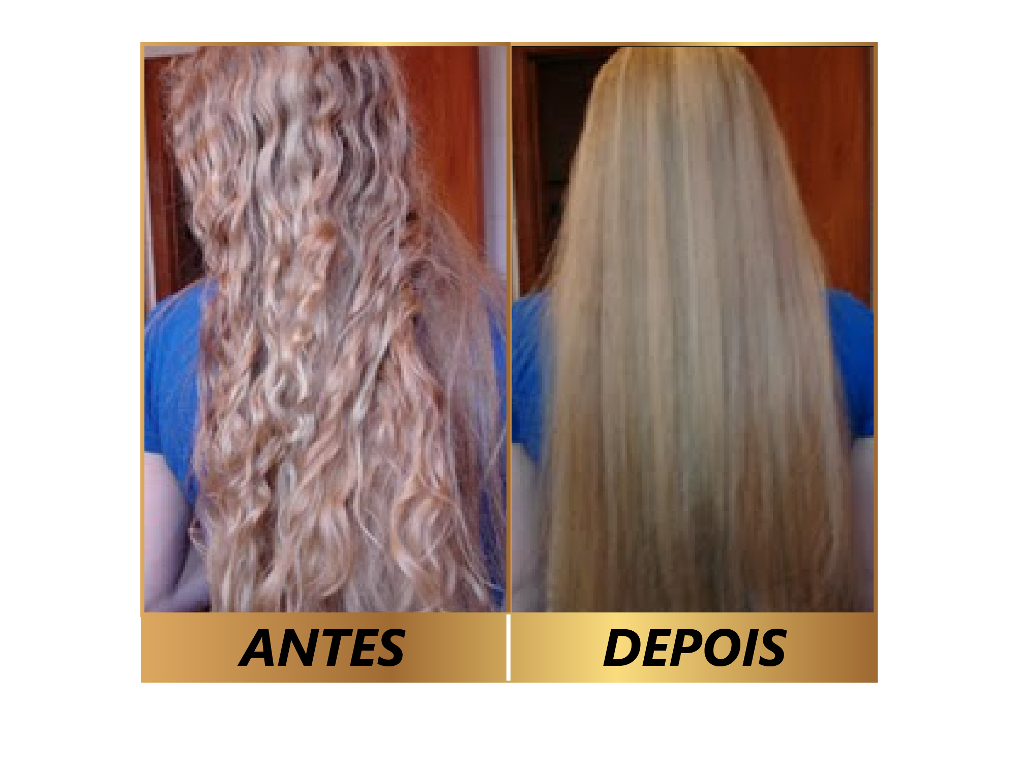 ultralizzo antes e depois